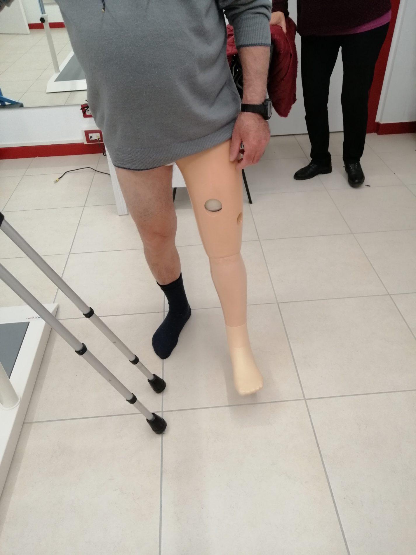 protesi-amputazione-coscia3