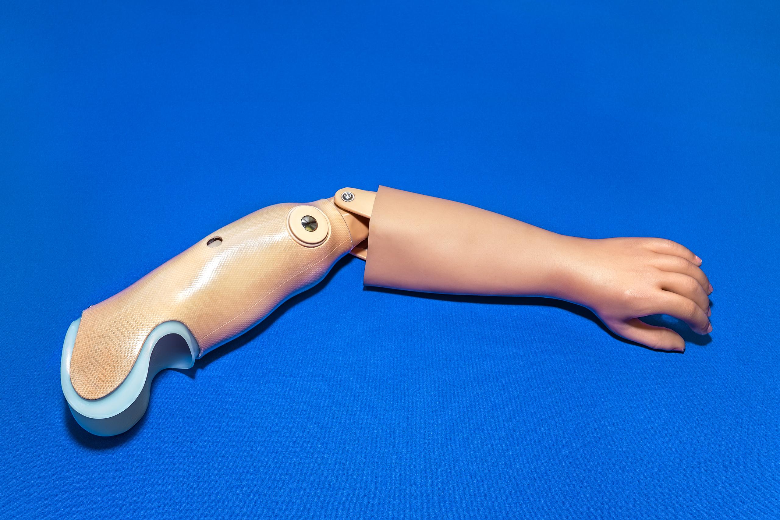 protesi-braccio