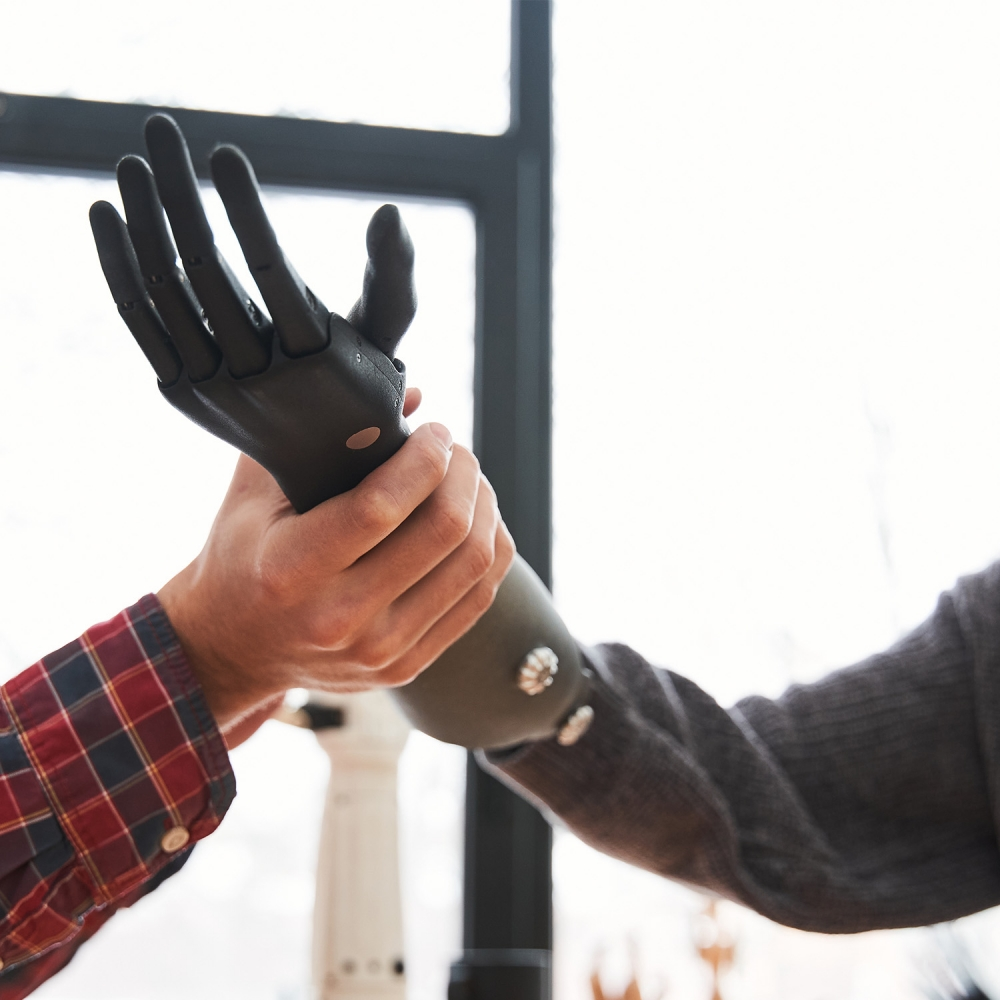 Male,Engineer,Putting,A,Prosthesis,On,A,Woman's,Hand